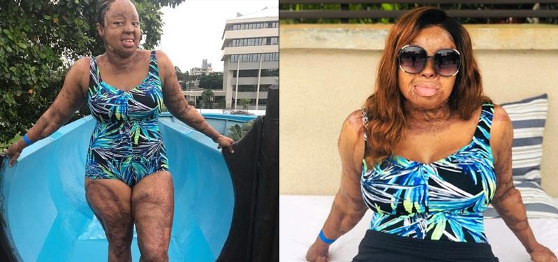 Kechi Okwuchi Sosoliso survivor shares bikini photos
