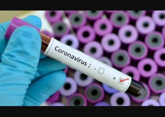 Photo of Coronavirus Case Toll In USA Hit 3 Million